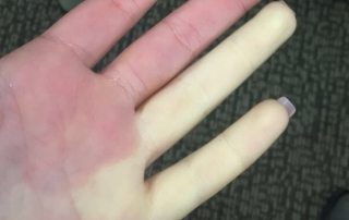 Can Chiropractic Care Offer Relief from Raynaud's Syndrome?